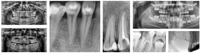 radiologie dentara bucuresti