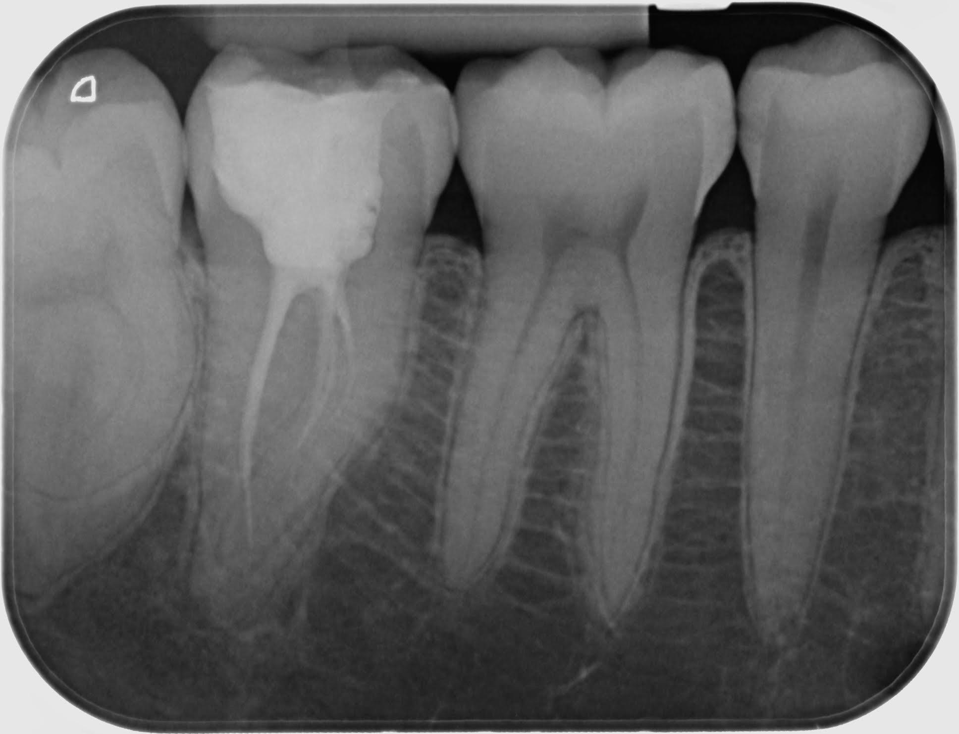 radiografii intraorale lipova