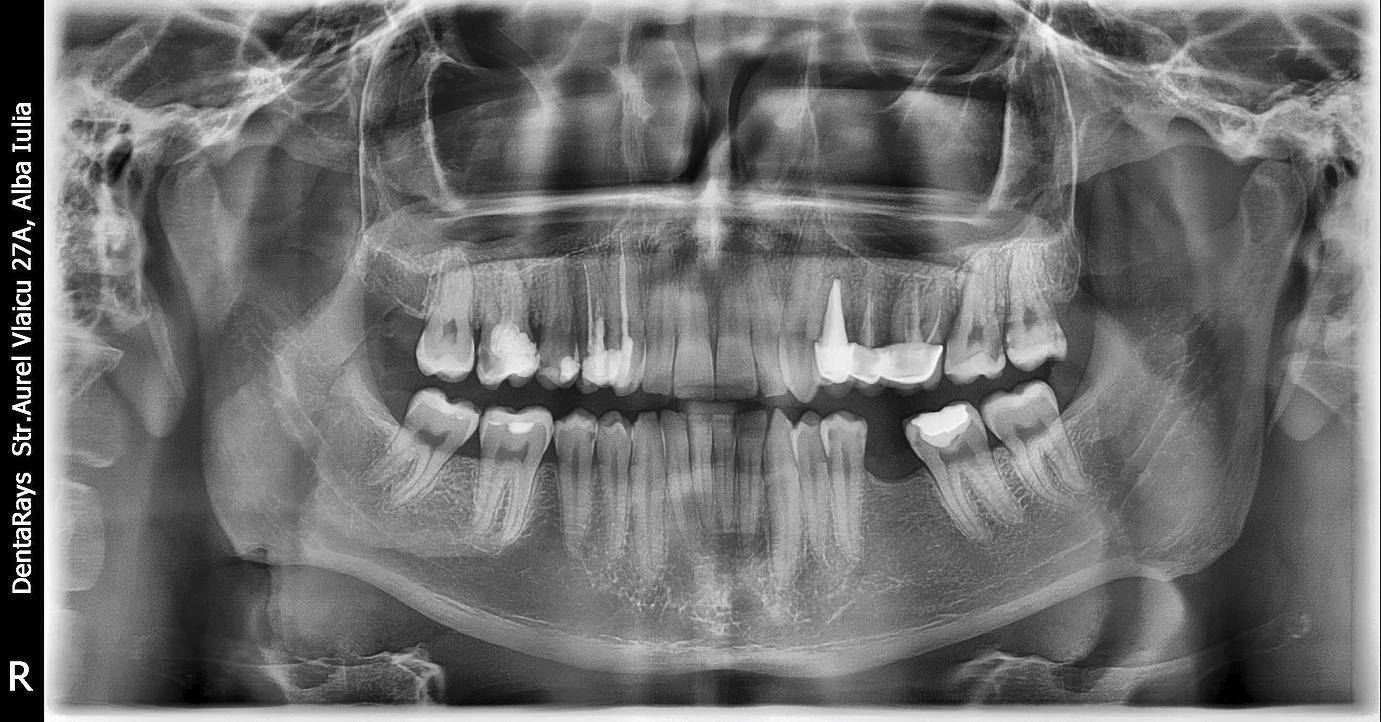 radiografii panoramice alba iulia