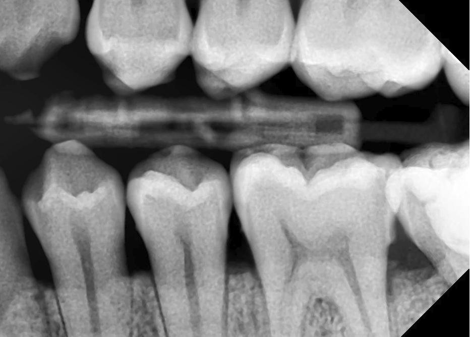 radiografii intraorale alba iulia